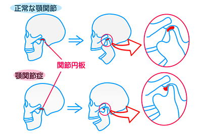 近年急増中の顎関節症の治療